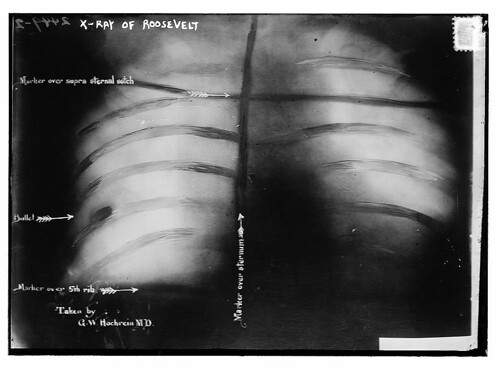X-Ray of Roosevelt [shows bullet]  (LOC) | by The Library of Congress