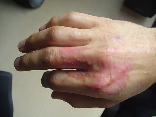 My Second Degree Burn - Healing | Flickr - Photo Sharing!