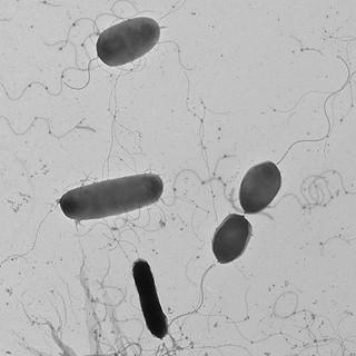 Microscope image of the Vibrium pathogen.