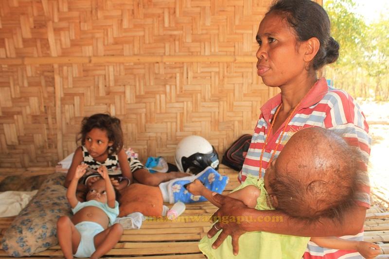 Ibu Orpha Dunga Hau, Mengendong Bayinya Santi yang kepalanya Membesar