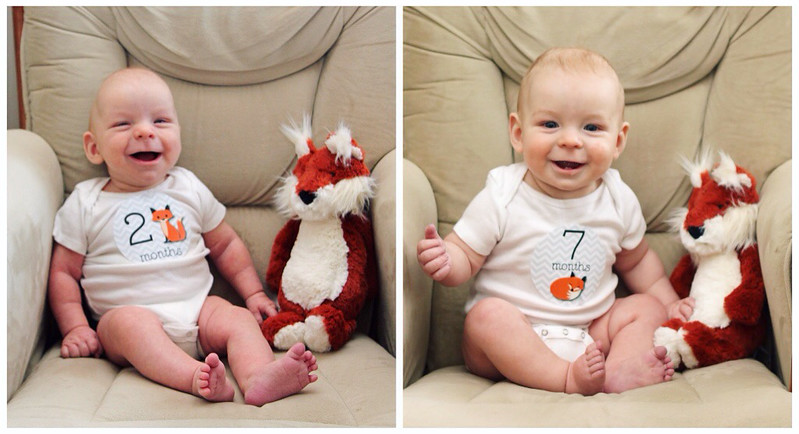 Jonathan Before & During Craniosynostosis Repair