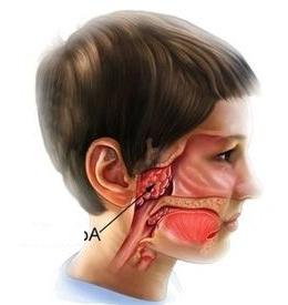 Obat radang adenoid