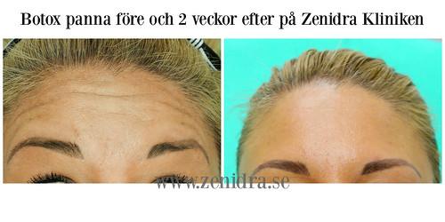 botox panna collage