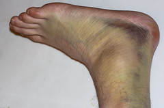 Severely Sprained Ankle