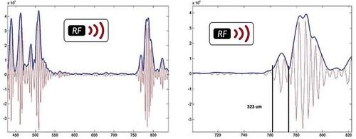Tehnologia ecografica cu RF radiofrecventa