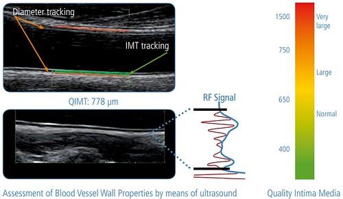 Comparatie intre metodele ecografice de evaluare ale rigiditatii arteriale