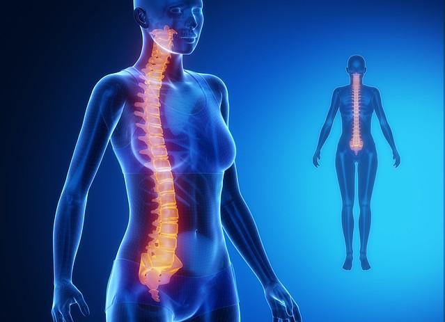 Gammagrafía ósea ray - COLUMNA azul x