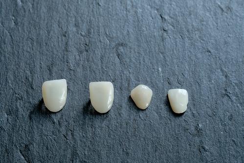[推薦] 台南佳美牙醫陶瓷美白貼片拯救了天生牙齒黃的我 (3)