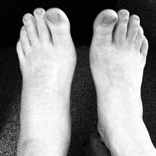 36 hours after the sprain warning ugly feet pic i forgot to take