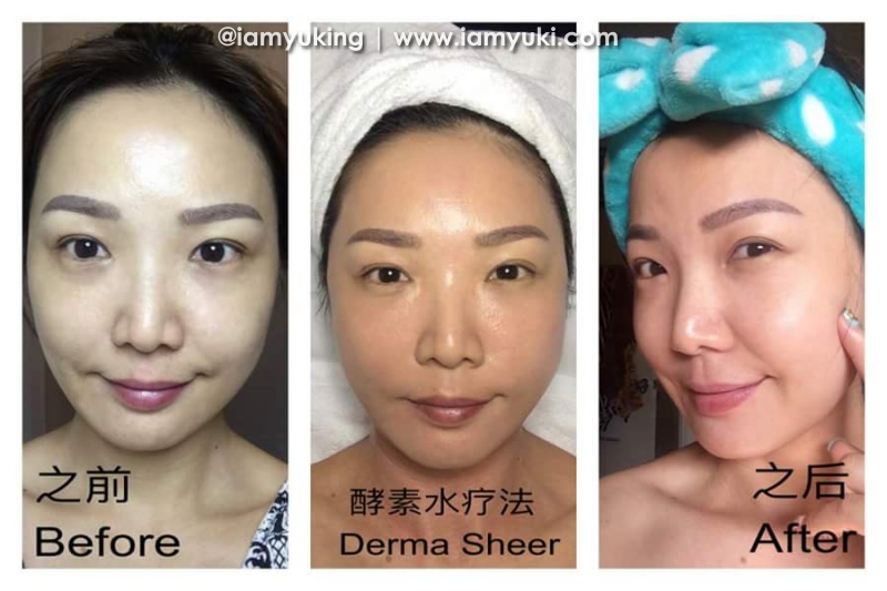 Calla SPA Singapore01Derma Sheer
