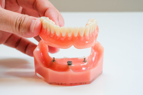 老人家全口缺牙,到底植牙好還是活動假牙好?林孟儒醫師專業觀點分享 (2)_活動式假牙