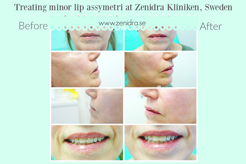 treating lip assymetri