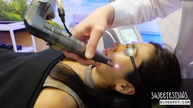 chrysalis spectra XT laser review (7)