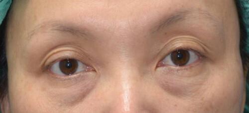 眼齡少5歲眼袋手術 (1)_術前