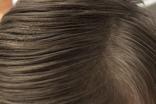頭皮 女性 薄毛