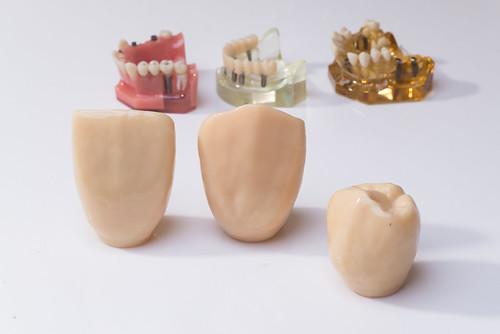 [推薦] 台南遠東牙醫3D齒雕讓我變身甜姐兒,展現完美微笑曲線(4)全瓷冠